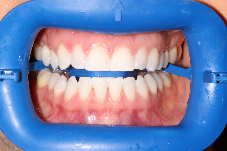 My Philips Zoom Teeth Whitening Treatment Beauty Rocks
