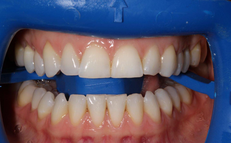 zoom teeth whitening near me