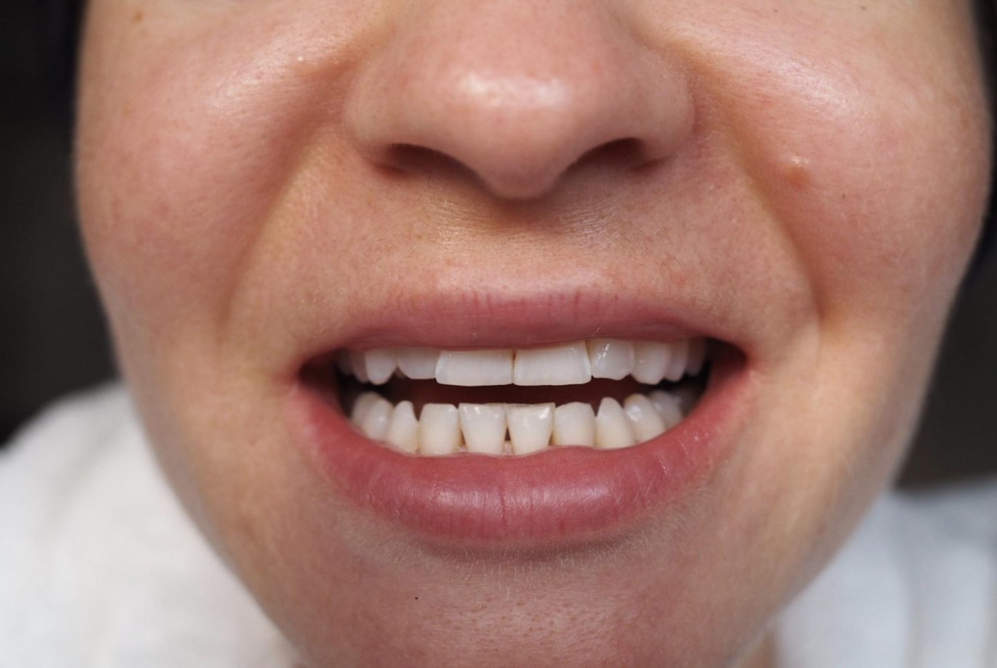before and after teeth whitening at home