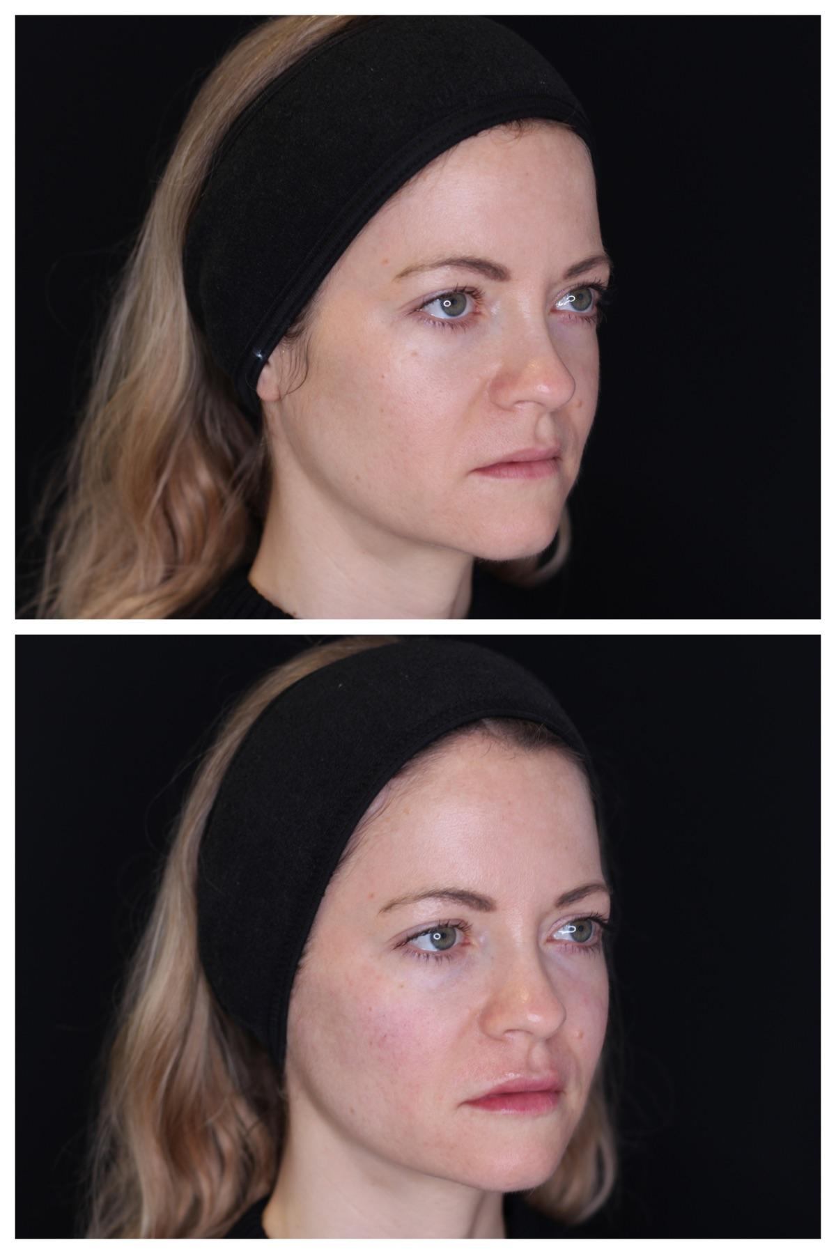 before/after filler pics